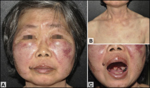 The clinical manifestations of the disease were evident. (A) The patient had symmetrical violaceous swelling on both cheeks. Deep-seated induration occurred on palpation. (B) Faint violaceous patches could be seen on her neck, upper chest, and on both arms. (C) An ulcer measuring 1.3 × 1.3 cm and covered with necrotic tissue was located on the patient's left tonsil.