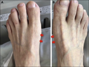 Atrophy of bilateral abductor halluces.