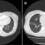 Computed tomography of the chest. (A) Before treatment, with right pulmonary infiltrates. (B) After 1 year of itraconazole, with marked improvement.