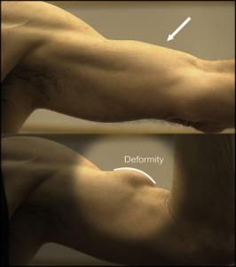 Popeye deformity