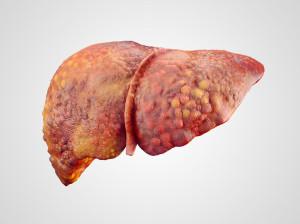 cirrhosis_liver-stock