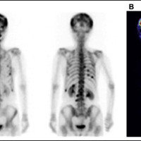 (A) Bone scintigraphy showing multiple uptake sites in the skull, vertebrae, and costal bones. (B) 18F-fluorodeoxyglucose positron emission tomography CT revealed low-level fluorodeoxyglucose accumulation in the vertebral bones.