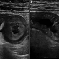 Abdominal ultrasonography showing edema of the jejunal wall and moderate ascites, in cross-section (A) and longitudinal section (B).