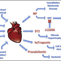 Pathophysiologic factors leading to alterations in levels of biomarkers used in the assessment and management heart failure. Note procalcitonin is not actually released from the heart, while NPs, ST2, and high-sensitivity troponin are released from the heart. NP = natriuretic peptide; NEP = neutral endopeptidase; hs = high-sensitivity.