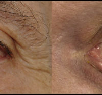 Left lower eyelid with a yellow, raised mass (left) with ulceration through the conjunctiva and tarsus (right)