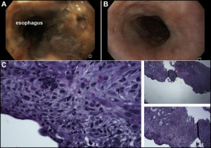 (A) Upper endoscopy on admission revealing acute necrotizing esophagitis with sloughing and darkening of the mucosa. (B) Follow-up upper endoscopy demonstrating partially healing esophagitis with no sloughing. (C) Low and high power microscopy revealing fibrinopurulent exudate and granulation tissue.