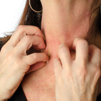 woman scratching her inflamed neck