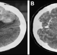 (A) Routine computed tomography scan of the brain showing a space-occupying lesion in the right frontotemporal lobe (mostly located in the frontal lobe) and (B) further contrast-enhanced scanning of the lesion.