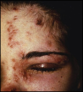 Patient with herpes zoster ophthalmicus demonstrating Hutchinson sign.