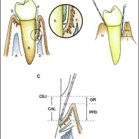 (A) Comparison of structures of periodontal tissues in health and disease. (B) Measurement of periodontal pocket depth using a periodontal probe. (C) Illustration of measurement method and pathologic landmarks of periodontal diseases. A = alveolar bone; BP = bottom of the periodontal pocket; C = calculus; CAL = clinical attachment loss; CEJ = cemento-enamel junction; D = destructive alveolar bone; E = epithelium; G = gingival sulcus; GR = gingival recession; H = healthy gingiva; I = inflammatory gingiva; P = periodontal pocket; PPD = periodontal pocket depth; PD = periodontal disease; R = root.