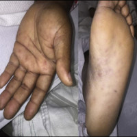 The patient had a hyperpigmented maculopapular rash on his palms and the soles of his feet.