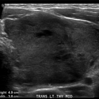 Thyroid ultrasound demonstrated a large complex nodule measuring 6.6 × 4.5 × 3.3 cm with central internal blood flow that occupied almost the entire left thyroid lobe.