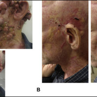 (A) Left temporal cutaneous lesion prior to immunotherapy. (B) Left temporal cutaneous lesion after 7 cycles of immunotherapy.