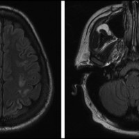 Magnetic resonance imaging (MRI) scan showing multifocal ischemic stroke. Diffusion-weighted imaging and T2 fluid-attenuated inversion recovery (FLAIR) images of brain MRI show multiple foci of diffusion restriction with FLAIR signal abnormality consistent with acute to early subacute infarcts. There was also an old lacunar infarct in left corona radiate and external capsule.