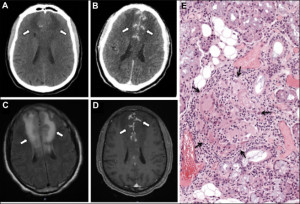 Brain computed tomography showing bifrontal hypodensity (A; white arrows, precontrast) with focal meningeal enhancement (B; white arrows, postcontrast). Brain magnetic resonance imaging confirmed marked bifrontal edema (C; white arrows, hyperintense on axial T2-weighted image) and leptomeningeal thickening (D; white arrows, axial T1-weighted image with contrast). Salivary gland histopathology showing typical noncaseating granuloma with giant cells (E; black arrows, hematoxylin staining, ×10 magnification).