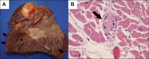 Pertinent findings at autopsy included (A) the heart showing multiple foci of subepicardial acute infarction (gross image) and (B) platelet fibrin thrombi in the coronary microvasculature (hematoxylin & eosin stain, 400×).