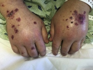 The patient had dorsal edema and purpura on both hands.