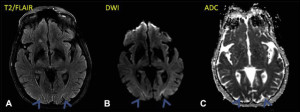 Magnetic resonance imaging of the head performed 5 days after a hypoxic episode demonstrated T2/fluid-attenuated inversion recovery (FLAIR) hyperintensities (A) with corresponding restricted diffusion on diffusion-weighted image (DWI) sequence (B) and apparent diffusion coefficient (ADC) sequence (C).