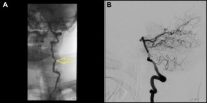 (A) Digital subtraction angiography (DSA) demonstrated focal stenosis of V2 segment of left vertebral artery (yellow arrow). (B) DSA revealed that the posterior circulation of the brain was otherwise normal beyond the level of stenosis.