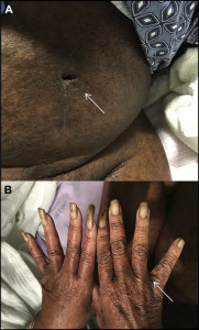 Hyperkeratotic thin papules and plaques were identified. A, The periumbilical area was marked. B, Lesions were also seen in the interdigital webbing.