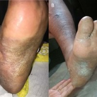 (A) This is what the patient's foot looked like during the index admission. The thickened skin denotes retention hyperkeratosis, which is a result of lymphedema. (B) Roughly 2 months after initiation of therapy with Unna boot compression, the patient reported marked improvement in pain and swelling. Hyperkeratosis remained.