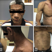 Loss of subcutaneous fat from the (A) face, (B) limbs, (C) neck, and (D) trunk.