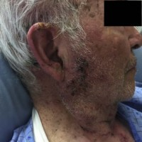 Photograph of the patient's multi-dermatomal vesicular rash. Lesions are shown on the right face, neck, and chest.