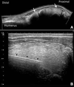 (A) Ultrasound imaging of the patient's right shoulder, shown here in this panoramic view, revealed multiple, round, mass-type lesions with homogenous echoes (arrows) and irregularly scattered hyperechoic plaques with acoustic shadows. (B) Ultrasound-guided aspiration was performed using the direct in-plane technique. The arrowheads indicate the needle.