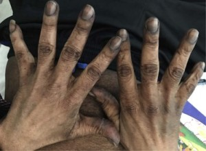 Hyperpigmentation of the skin and nails is evident in this dorsal view of the patient's hands.