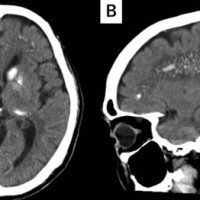 Computed tomography of the head showing bilateral and symmetrical calcifications in basal ganglia in the axial image (A), and in the cerebellum and at the gray-white junction in the sagittal image (B).