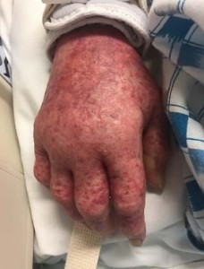 The patient's right hand was covered with erythematous macules.