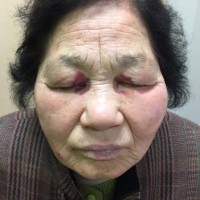 Photograph of the patient's face shows bilateral periorbital ecchymosis (raccoon eye appearance).