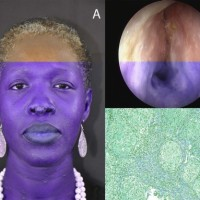 (A) Skin impairment. Papulonodular skin lesions on the tip of the nose, from 3 to 10 mm, characteristic of sarcoidosis: firm, nonedematous, noninflammatory, nonpainful, nonpruriginous, with predominant facial involvement. (B) Endoscopic view (right nasal fossa) showing a major mucosae thickening. (C) Numerous uniform circumscribed nests of non-caseating granulomata which are characterized by the paucicity of lymphocytes and absence of necrosis.