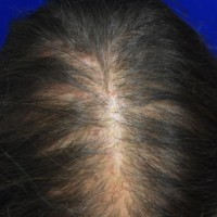 Thinning of the hair in the frontoparietal scalp was due to androgenic alopecia.
