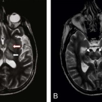 T2-weighted magnetic resonance imaging was carried out. (A) Hyperintensities were noted in the bilateral thalami (arrows with black outline) and globus pallidi (arrows with red outline). (B) The white arrows indicate hyperintensities in the substantia nigra.
