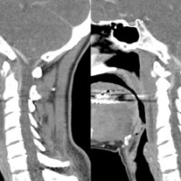 Reformatted consecutive sagittal computed tomography images of the cervical spine. There are small calcifications at the insertion of the longus colli, adjacent to the cortical margin of the anterior arch of C1.