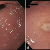 (A) Esophagogastroduodenoscopy demonstrated multiple ulcers in the prepyloric area of the patient's stomach. (B) This is a close-up of a prepyloric ulcer.