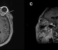 Magnetic resonance imaging brain scan with contrast. (A) Axial view showing (arrow) transverse and sigmoid sinus venous thrombosis. (B) Axial view showing (arrow) left ophthalmic vein thrombosis. (C) Sagittal view showing (arrow) left ophthalmic vein thrombosis. (D) Axial view showing (arrow) focal perichiasmatic enhancement of the left optic nerve.