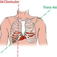 Midclavicular and transaxial measurements of the liver.