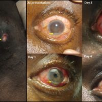 (Left panel) Left upper extremity brachiocephalic arteriovenous fistula with skin degeneration and oozing. (Right panel) Ocular examination findings showing improvement from the time of presentation. Arrow points to hypopyon in each image (resolved by day 4). Intravitreal antibiotics were administered at presentation, and consequent subconjunctival hemorrhage can be seen in the subsequent images.