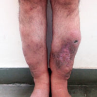 Raised nodular lesions on patient's shins at presentation.